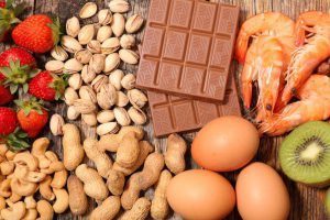 MInistero della Salute: un po' di chiarezza sulle allergie alimentari